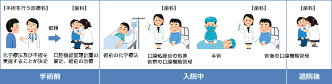 周術期口腔機能管理